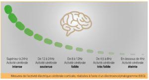 Mesures de l'activité électrique cérébrale corticale, réalisées à l'aide d'un EEG