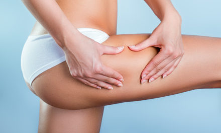 La cellulite, comment la prévenir et la traiter ?